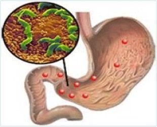 Що таке хронічний гастродуоденіт?
