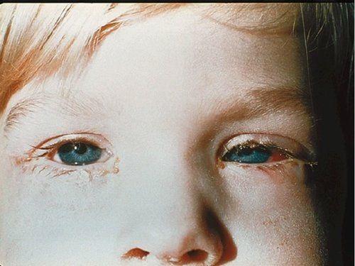 Що за хвороба - кон`юнктивіт очей