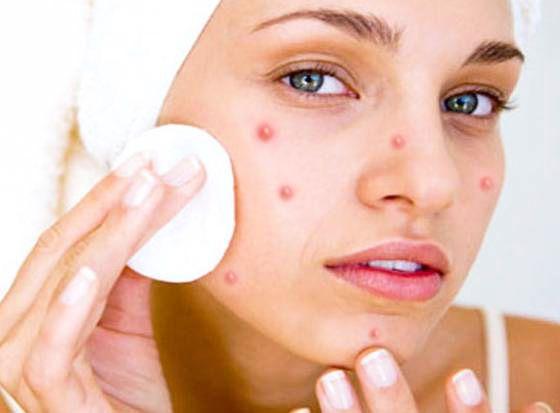 Дисбактеріоз і прищі на обличчі