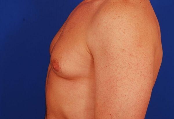 Хірургічне видалення гінекомастії