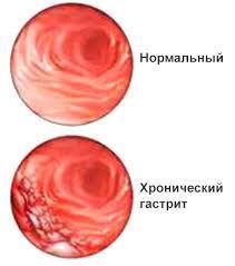 Хронічний гастрит антрального відділу шлунка