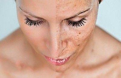 Які природні засоби допоможуть прибрати шрами після прищів