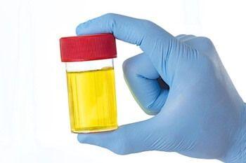 Зміна аналізу сечі при гломерулонефриті