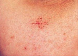Естетична проблема - судинні зірочки на обличчі: як позбутися від недуги