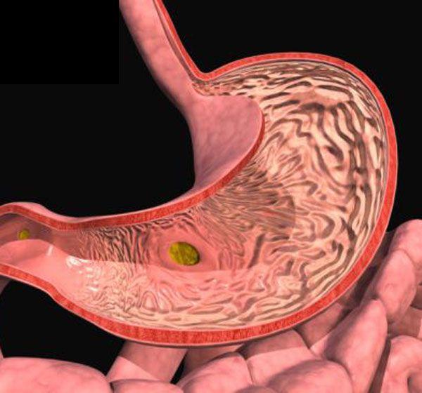 Лікування гастродуоденита зі зниженою кислотністю