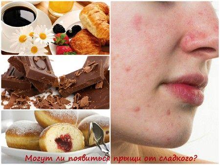 Як уберегти організм від «солодких» прищів