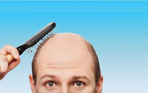 Який засіб для волосся краще для чоловіків
