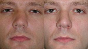 Методи виправлення викривленої носової перегородки - фото до і після