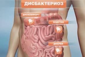Визначення дисбактеріозу кишечника