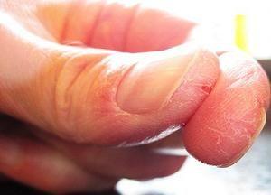 Чому з`являються тріщини на пальцях рук: причини і методи лікування