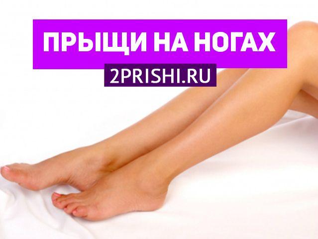 Способи лікування червоних прищиків на ногах у жінок і причини їх появи