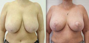 Зменшення грудних залоз: відгуки, фото до і після