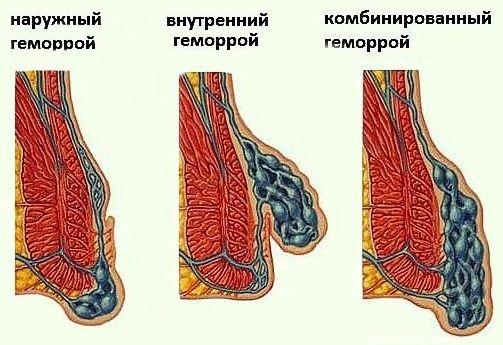 Види, форми, типи геморою, які бувають гемороїдальні вузли?