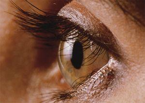 Що таке рогівка ока